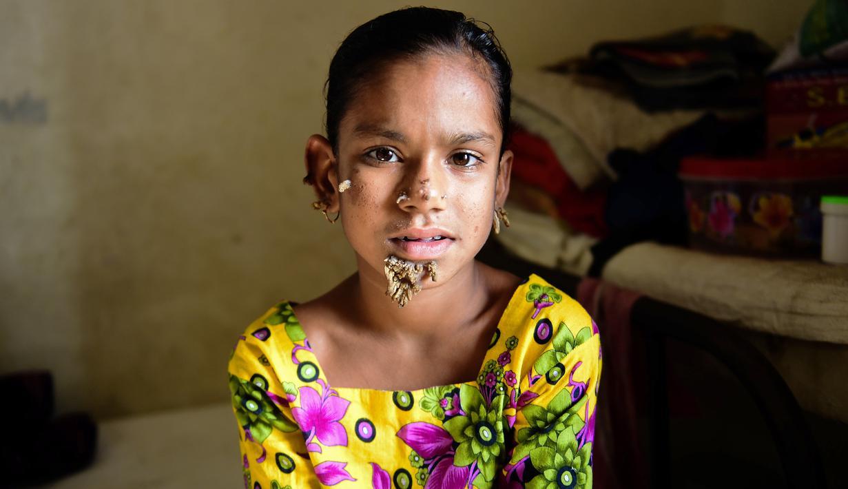 gadis 10 tahun ini didiagnosis jadi manusia pohon