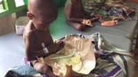 Anak-anak di Kabupaten Asmat yang menderita campak dan gizi buruk (Liputan6.com / ist - Nefri Inge)