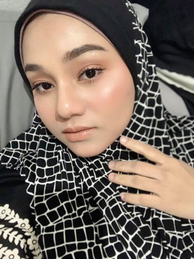 Viral, Wajah Wanita Ini Mendadak Berubah saat Hamil - Hot Liputan6.com