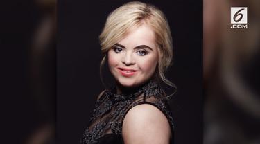 Kate Grant jadi penyandang down syndrome pertama yang mampun meraih gelar ratu kecantikan di Kontes Teen Ultimate Beauty of The World.