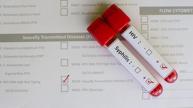 Penyakit Menular Seksual Gejala Dan Cara Penanganannya Yang Harus Diketahui Health Liputan6 Com