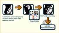 Pendekatan ini memungkinkan untuk menandai antibodi perangsang ASD dan bisa mengarahkan pengembangan obat yang menghalangi antibodi ini.