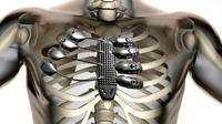 Rusuk titanium ciptaan lembaga penelitian Australia bekerjasama dengan sebuah perusahaan teknologi pencetakan teknologi 3D.