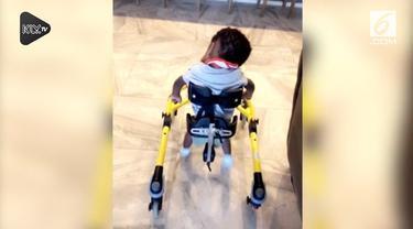 Seorang ibu merekam momen haru dimana sang anak yang menderita hidrosefalus berhasil melangkahkan kaki untuk pertama kali.