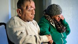 Elisa, ibu Walter DeLeon, menangis saat putranya menceritakan kejadian penembakan oleh petugas kepolisian Los Angeles yang membuatnya  nyaris buta dan tidak dapat berjalan di Covina, California, Rabu (2/12/2015). (AP/Chris Carlson/Dailymail)