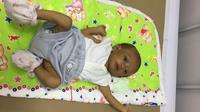 Azkalubik Adhyastha Fatkhulloh, 2 bulan, Didiagnosis Dokter Menderita Penyakit Hati Langka, Atresia Billier. (Kitabisa.com)