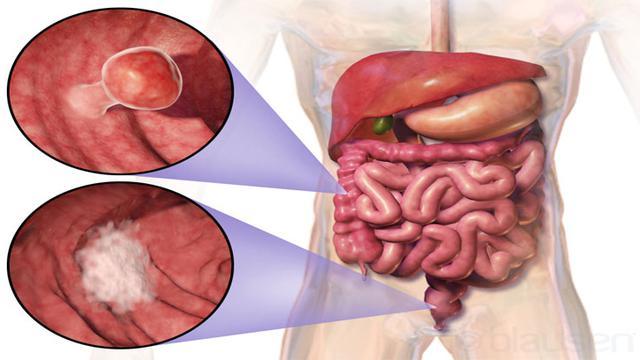 Top 3 Hari Ini: Gejala Kanker Usus yang Wajib Anda Tahu ...
