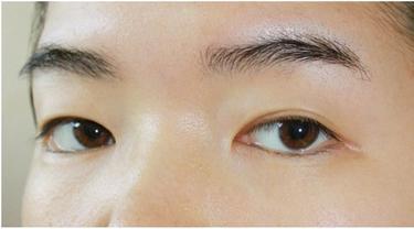 2 Cara Membuat Mata Sipit Agar Terlihat Bulat