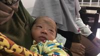 Seorang bayi berusia tiga pekan di Samarindamengeluarkan darah saat menangis.