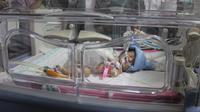 Aysha, salah satu bayi kembar siam yang berhasil selamat usai operasi pemisahan selama 7 jam di RSMH Palembang (Dok. Humas Pemprov Sumsel / Nefri Inge)