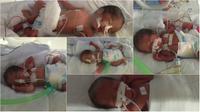 Pasutri asal Cirebin lahirkan bayi kembar 5 (Istimewa)