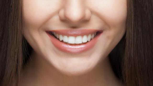 5 Makanan Ini Ampuh Memutihkan Gigi Secara Alami Lifestyle