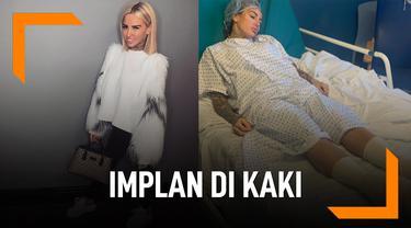 DJ Seksi Ini Pasang Implan di Kaki, Terobsesi Punya Badan Tinggi