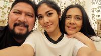 Hubungan baik setelah tak jadi suami istri juga ditunjukkan artis senior Lidya Kandou dan Jamal Mirdad. Pasangan yang membina rumah tangga selama 27 tahun itu kandas setelah Lydia mengajukan gugatan cerai. (Instagram/naymirdad)