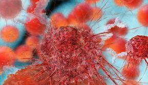 Ilustrasi Kanker Payudara (iStock)