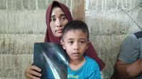 Ibu Aris, bocah penderita bocor jantung memperlihatkan hasil rontgen mengenai penyakit anaknya. (Liputan6.com/Rino Abonita)