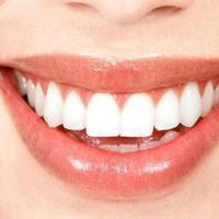 Ilustrasi gigi putih. (via: kusuka.com)