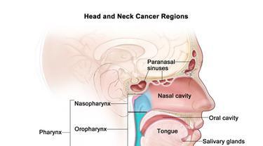 Banyak Pria di India yang Derita Kanker Kepala dan Leher