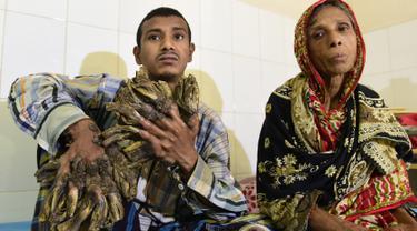 Abul Bajandar (26) mengalami kutil berlebihan yang membuatnya tampak seperti manusia akar, di Dhaka Medical College dan Rumah Sakit, Bangladesh, Minggu (31/1). Bajandar mengaku penyakitnya pertama kali muncul pada 10 tahun lalu. (AFP Photo/Munir uz ZAMAN)