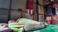 Nur Hindra (38), warga Kutai Kartanegara hanya bisa berbaring di ruang tamu rumahnya sambil menahan sakit akibat kulitnya yang terus mengelupas.