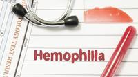 Benarkah Hemofilia Lebih Mudah Menyerang Pria? (Shidlovski/Shutterstock)