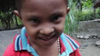 Meski gembira bermain seperti anak normal, bocah 6 tahun yang buang kotoran dari perut itu selalu kesakitan setiap pulang. (Liputan6.com/Ola Keda)