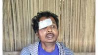 Bastian Mau (50), warga Desa Oelpuah, Kabupaten  Kupang, NTT, nyaris dibakar hidup-hidup oleh warga karena dituduh sebagai  dukun santet alias sihir.
