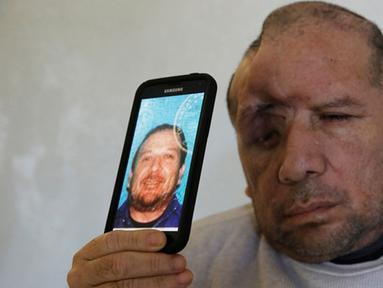 Walter DeLeon menunjukkan foto di SIM-nya di Covina, California, Rabu (2/12/2015). Pria 49 tahun itu kehilangan seperempat tempurung kepalanya setelah ditembak oleh petugas kepolisian Los Angeles pada 19 Juni lalu. (AP/Chris Carlson/Dailymail)