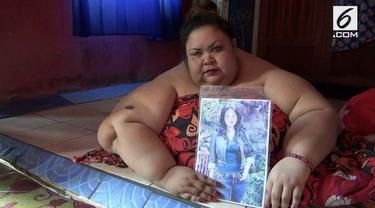 Seorang wanita di Palangkaraya, Kalimantan Tengah mengalami obesitas dan mempunyai berat hingga 300 kg. Kondisi ini membuatnya tak bisa beraktifitas dan butuh bantuan untuk mengecilkan berat badannya.
