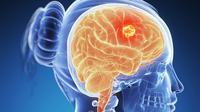 Fakta-fakta soal kanker otak yang mungkin belum kamu ketahui.   via: channel4.com